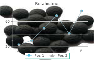 buy betahistine 16mg low cost